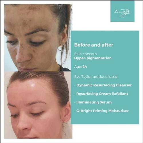 Before and After Pictures using Eve Taylor Skincare products. These work great alongside a SkinSpecific Facial available from The Beauty Box, Duston, Northampton.