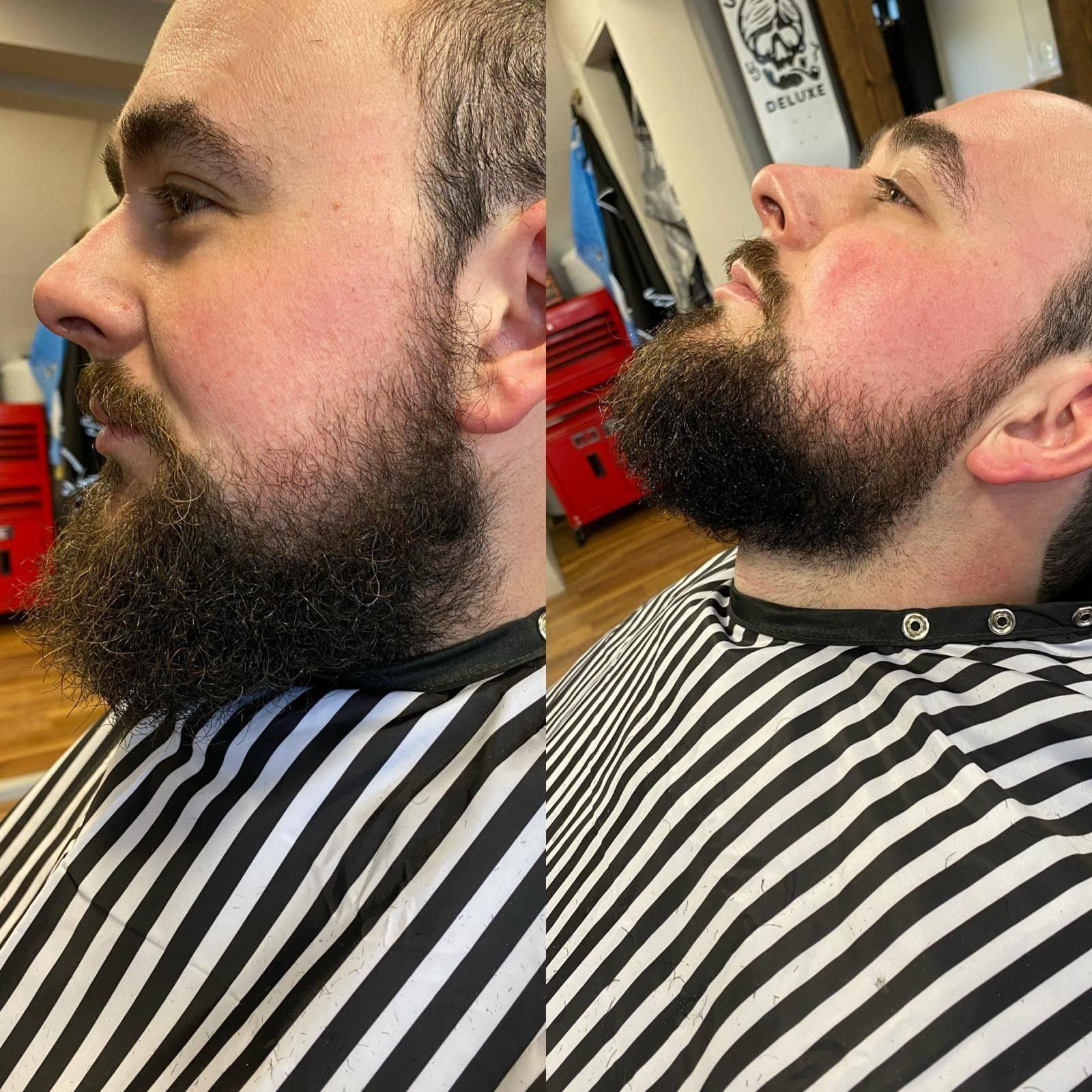 Beard Trim Deluxe