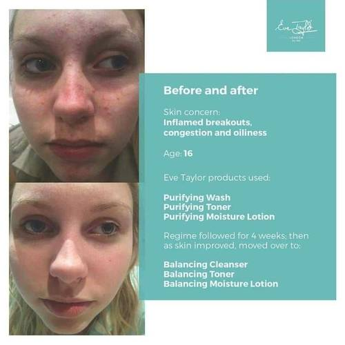 Before and After pictures from using Eve Taylor Skin care. These products work well alongside regular GalvoDerm Facials available at The Beauty Box, Duston, Northampton