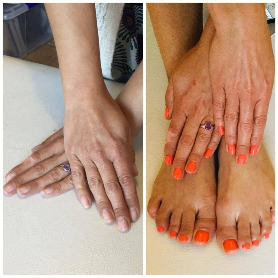 Before and after gel nails