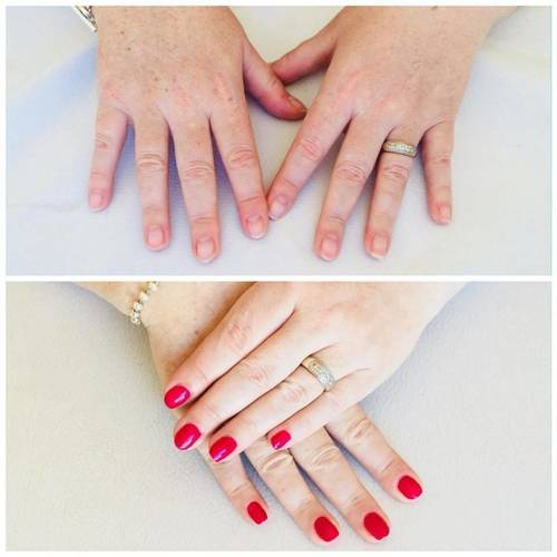 Before and after shellac