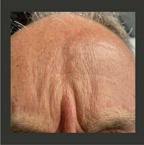 Smooth out wrinkles. GENTRY & RESOLVE AESTHETICS.