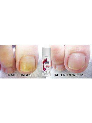 Footlogix Anti-fungal Toe Tincture